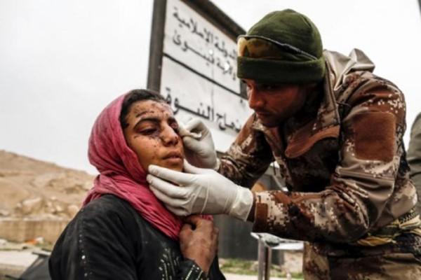 Một phụ nữ bị thương trong vụ nã pháo được điều trị khi lực lượng Iraq chiến đấu với IS ở tây Mosul hôm 2/3. Ảnh:Reuters